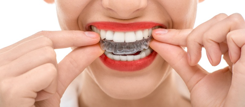 Closeup of a woman wearing red lipstick putting on clear aligner Invisalign trays to straighten her teeth