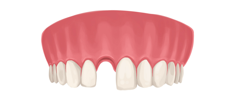 Drawing of the upper arch of teeth with a missing front tooth that needs a dental implant