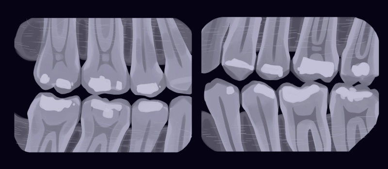 Cartoon image of bitewing dental X-rays to show the health of the teeth and any decay